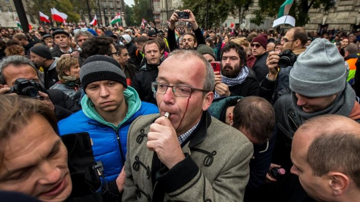 Historian Krisztián Ungváry was beat up by Prime Minister Viktor Orbán's supporters on Sunday.